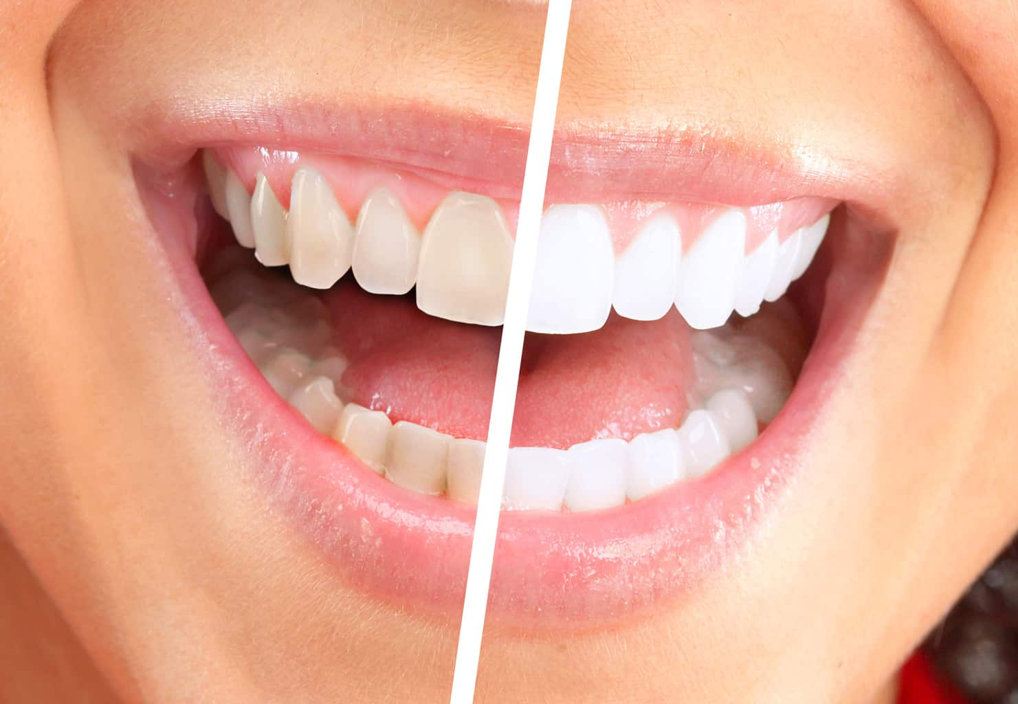 cosmetic dentistry Wahroonga Hornsby
