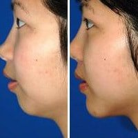 Facial Aesthetics-chin-fillers-sydney