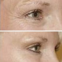 Wahroonga Facial Aesthetics-cosmetic-injections-crows-feet-sydney