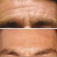 cosmetic injections forehead lines Hornsby Sydney
