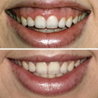 cosmetic injections gumamy smile Upper North Shore Sydney