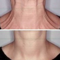cosmetic injections neckline Upper North Shore