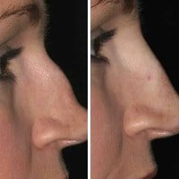 Wahroonga Facial Aesthetics-nose-enhancement-sydney