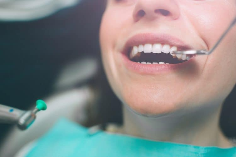 dental filling dislodged