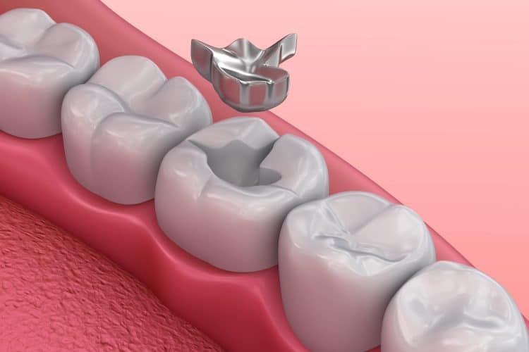 dislodged tooth filling