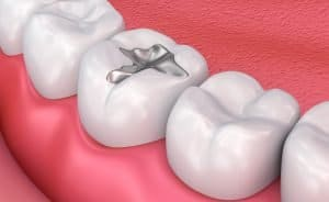 tooth filling treatment