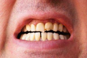 wear and tear on teeth